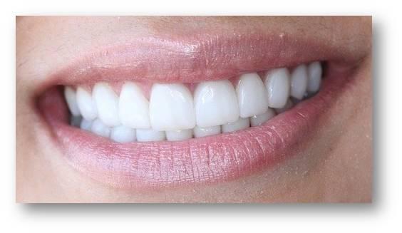 как делаются виниры на зубы видео