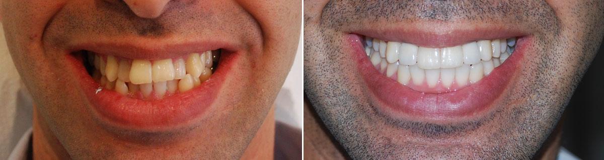 Один кривой зуб фото до и после