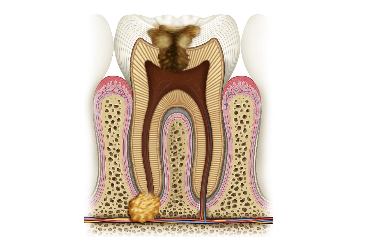 Гранулема корня зуба