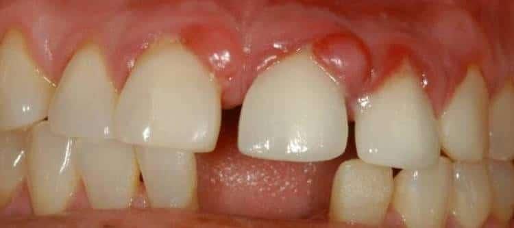 лечение гранулемы на зубе