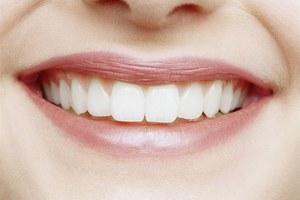 фарфоровые виниры на зубы цена