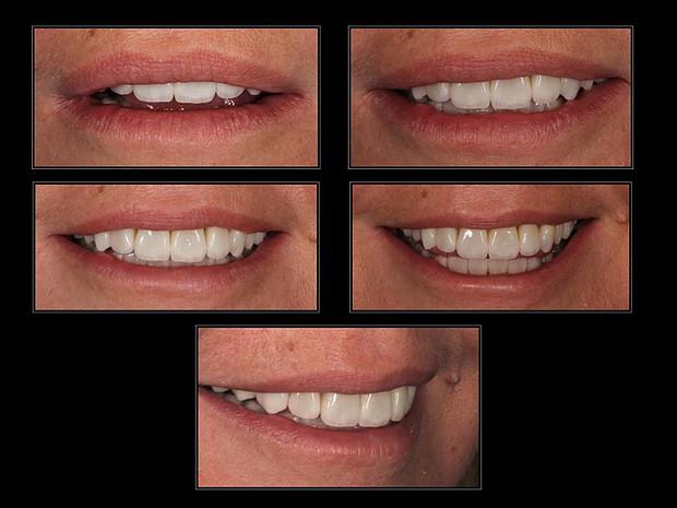 виниры на зубы цена запорожье