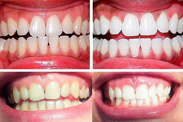 Отбеливание зубов фото до и после