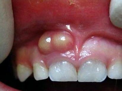 Периодонтитный абсцесс фотография полости рта пациента